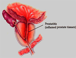 Картинки по запросу Chronic Prostatitis